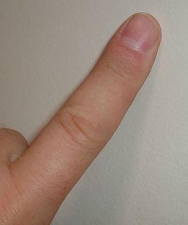 800px-Finger.agr.jpg